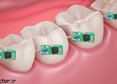 دندان مصنوعی بلوتوث دار تکنولوژی جدید