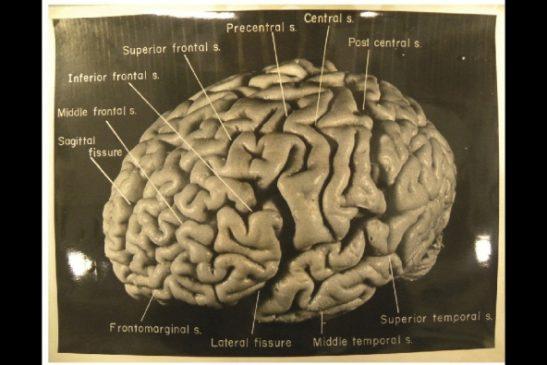 مغز انیشتین